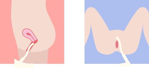 膣内、外陰部、大陰唇、小陰唇を撫でるようにして高周波をあてていきます。血行とコラーゲンの再生、増殖を促進します。じんわりした暖かさを感じるだけで、痛みはありません。サーミバーの直径1cmほどのスティックは使い捨てなので、衛生的にも安心です。